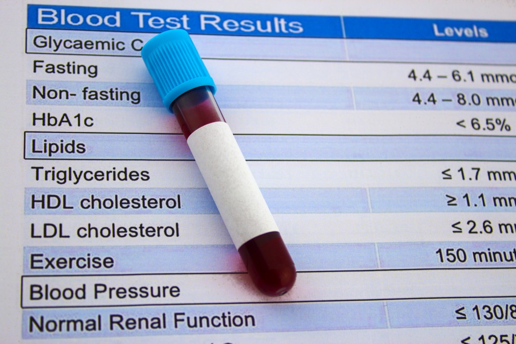 blood test tube and results for lipid panel